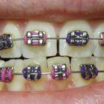 Zakaj izbrati nevidni aparat za zobe