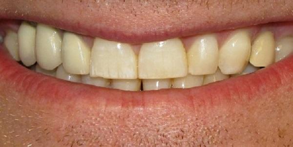 Granolom v korenini zoba